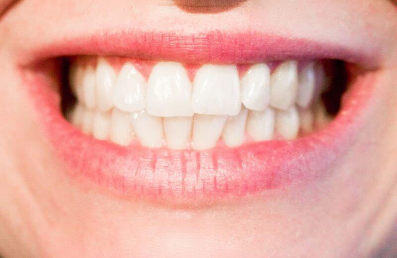 Weißere & gesunde Zähne Das hilft wirklich weiße Zähne aufhellen (7) fit-and-fresh.com